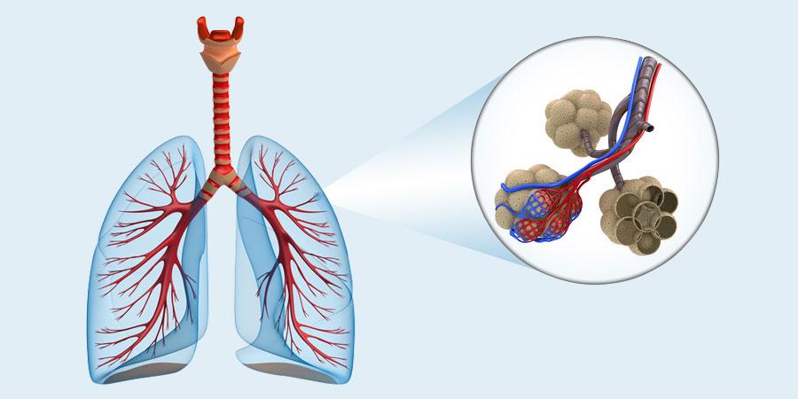 Ein Emphysem ist eine Erkrankung der Lungenbläschen